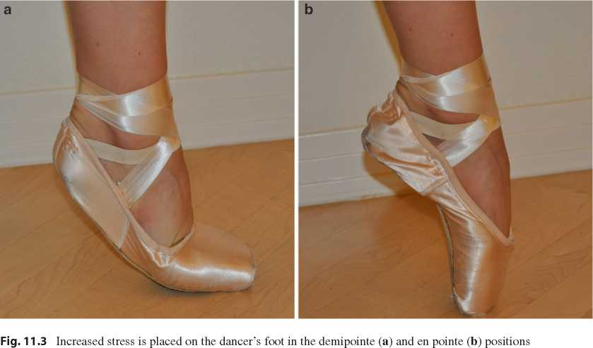 Pointe shoes feet problems