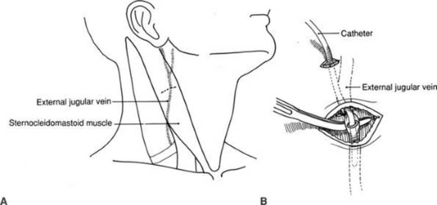 Venous Anatomy Of The Neck And External Jugular Venous Cutdown