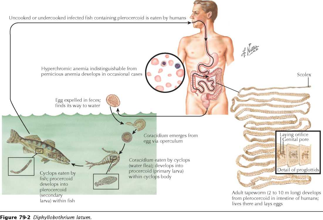 Clinical presentation and manifestations thus the presence of the tapeworm is often manifested by a patients complaint of the sensation of wriggling in the perianal region or undergarments pooptronica