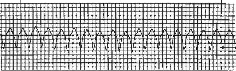 cardiac activity and ventricular tachycardia vt waveform Ventricular tachycardia (v-tach or vt) is a kind of regular and quick heart rate that emerges from improper electrical activity in the ventricles of the ventricular tachycardia (vt) is a broad complex tachycardia originating in the ventricles there are several various varieties of vt- the most being.