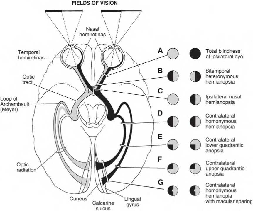 Lesions Of The Visual Pathways