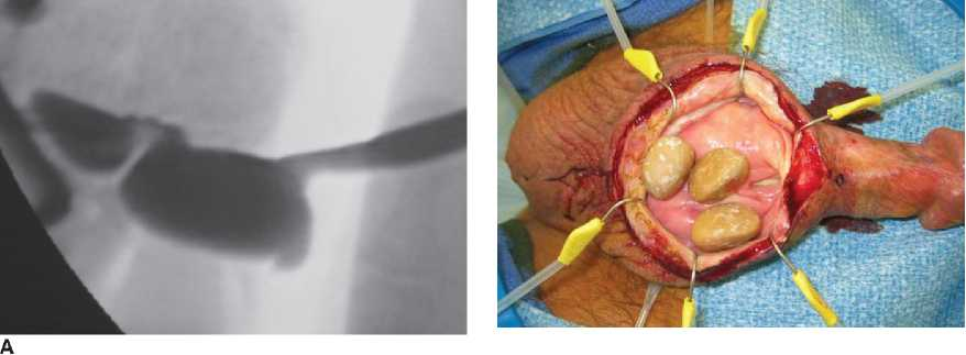 And before penile after pictures enlargement